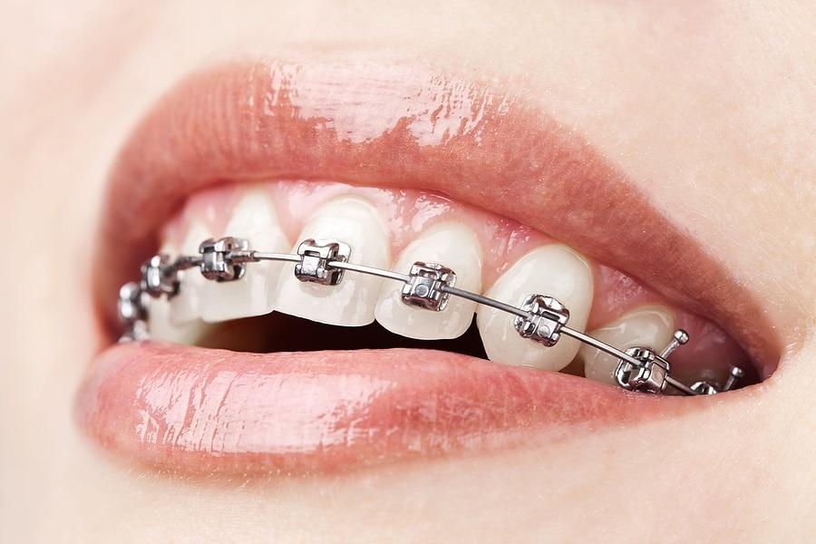 McKinney Orthodontist