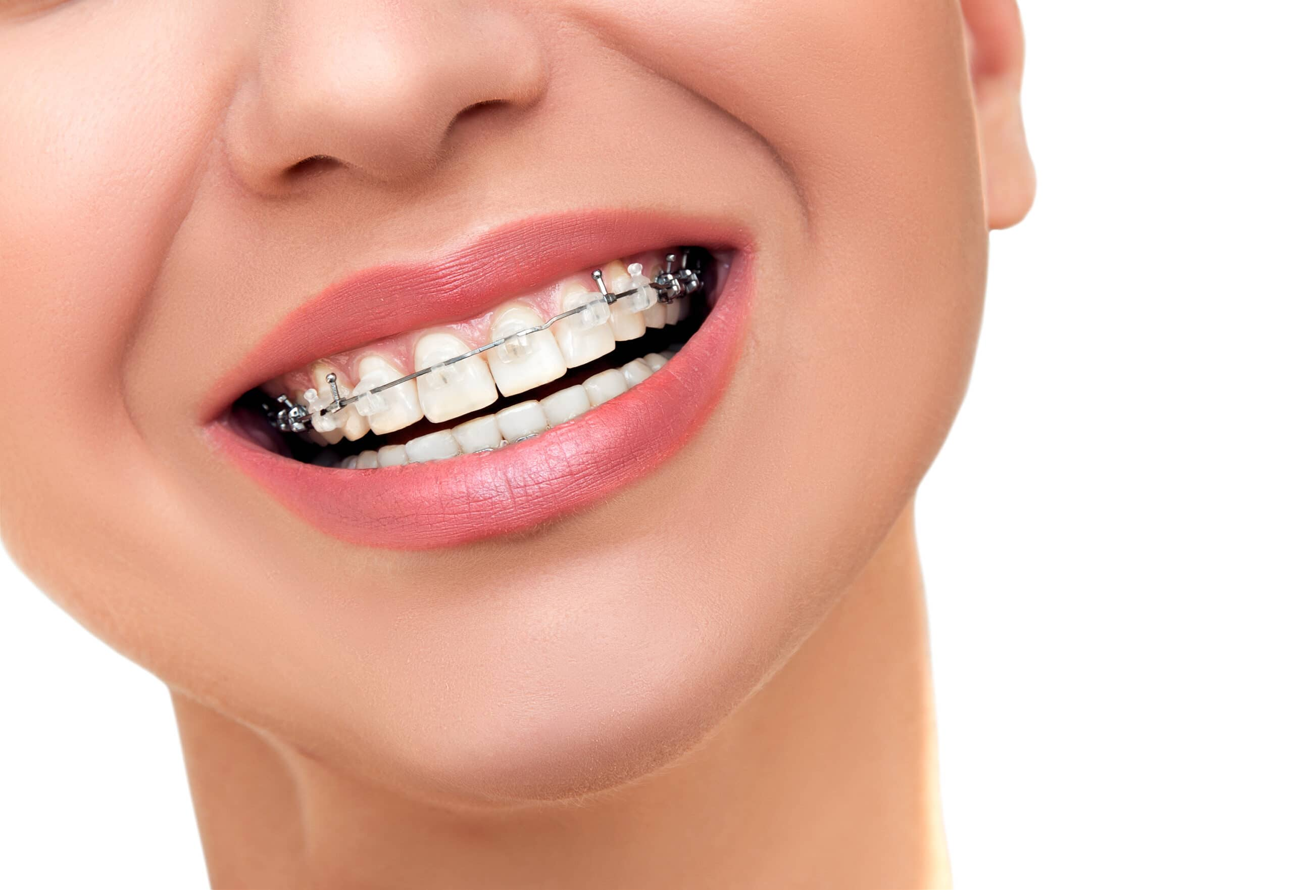 What is included in my complimentary orthodontic examination?